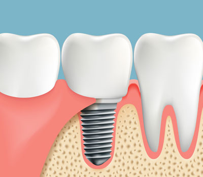 Tooth Replacement with Dental Implants